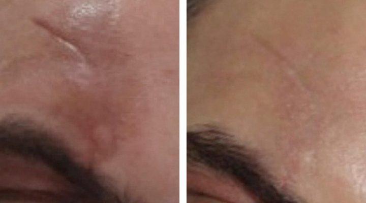 Cicatrici Cutanee